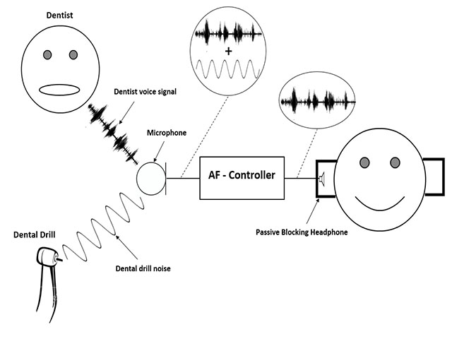 siledent  dentist drill noise cancellation system - solutions